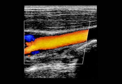 Womens Carotid Scan - Example ultrasound image