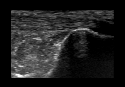 Mens Musculoskeletal Ankle and Foot Ultrasound Scan Example