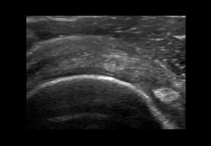 Womens Musculoskeletal Ultrasound Shoulder and Upper Arm Scan Example
