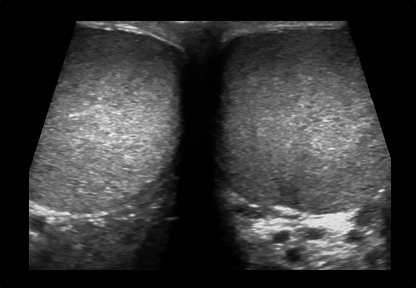 Mens Testes & Scrotum Ultrasound Scan Example