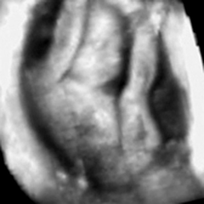 Presentation pregnnacy scan - Ultrasound Image Illustrating Fetal Presentation