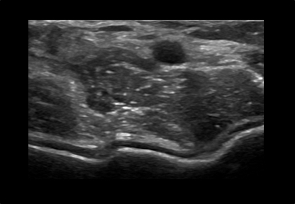 Womens Musculoskeletal Elbow and Forearm Ultrasound Scan Example