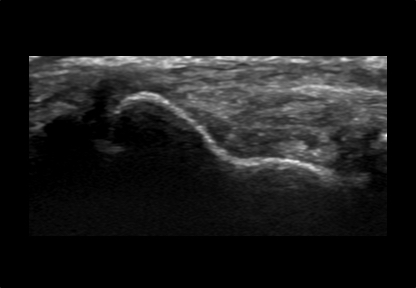 Womens Musculoskeletal Wrist and Hand Ultrasound Scan Example